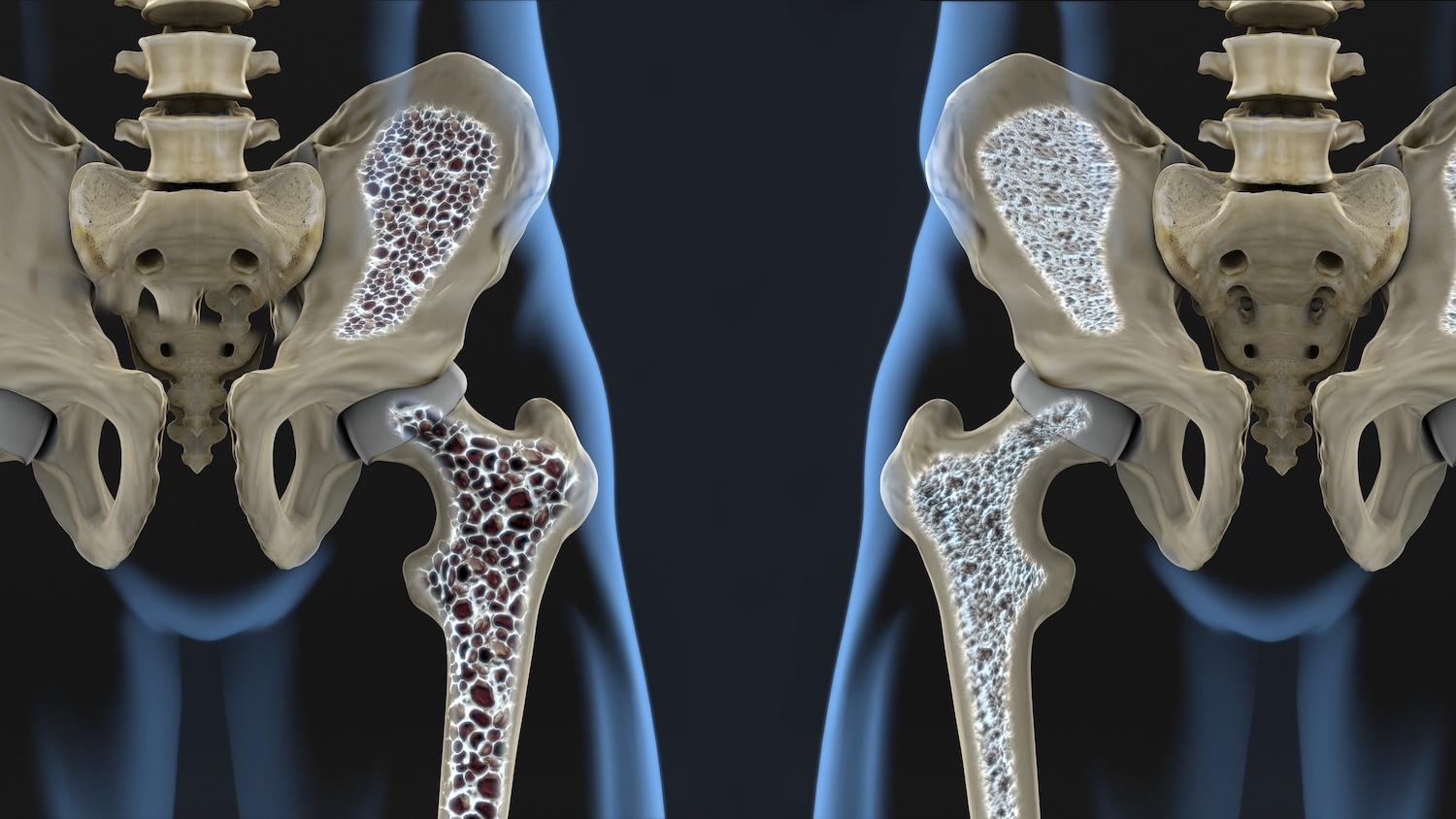 Recent changes in the United States for Osteoporosis Screening